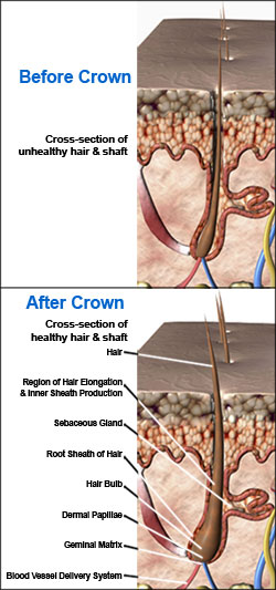 Hair Restoration Solutions Risk Free Thinning Hair Regrowth