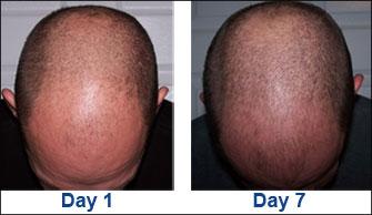 hair loss formula