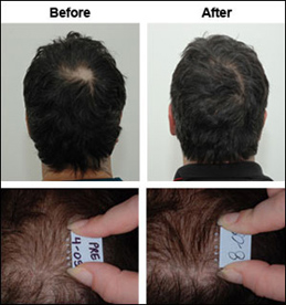 Is My Crown Thinning   Short Hairstyle 2013