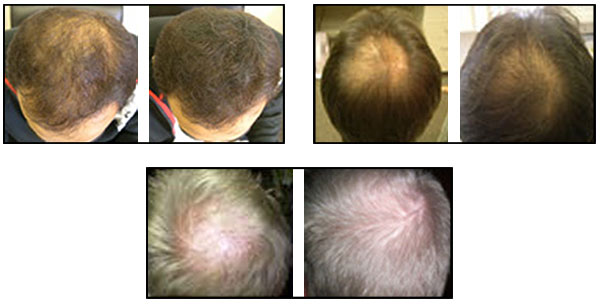 hair loss treatment for men and women | natural hair loss treatments